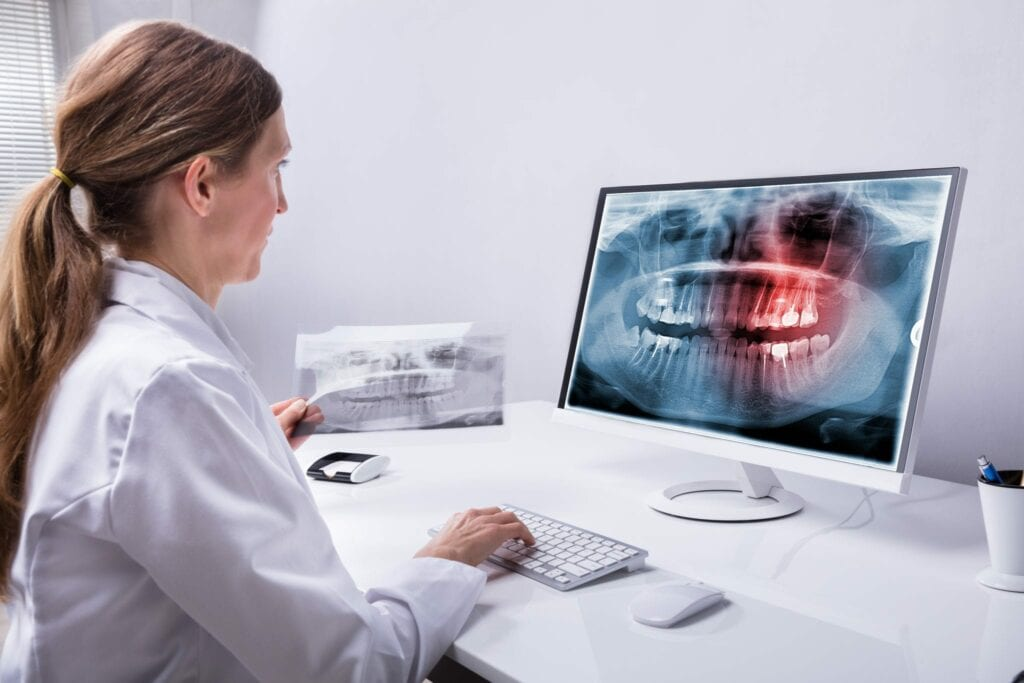 Dentist Looking At Teeth X-ray On Computer computer guided surgery dental implants idental group