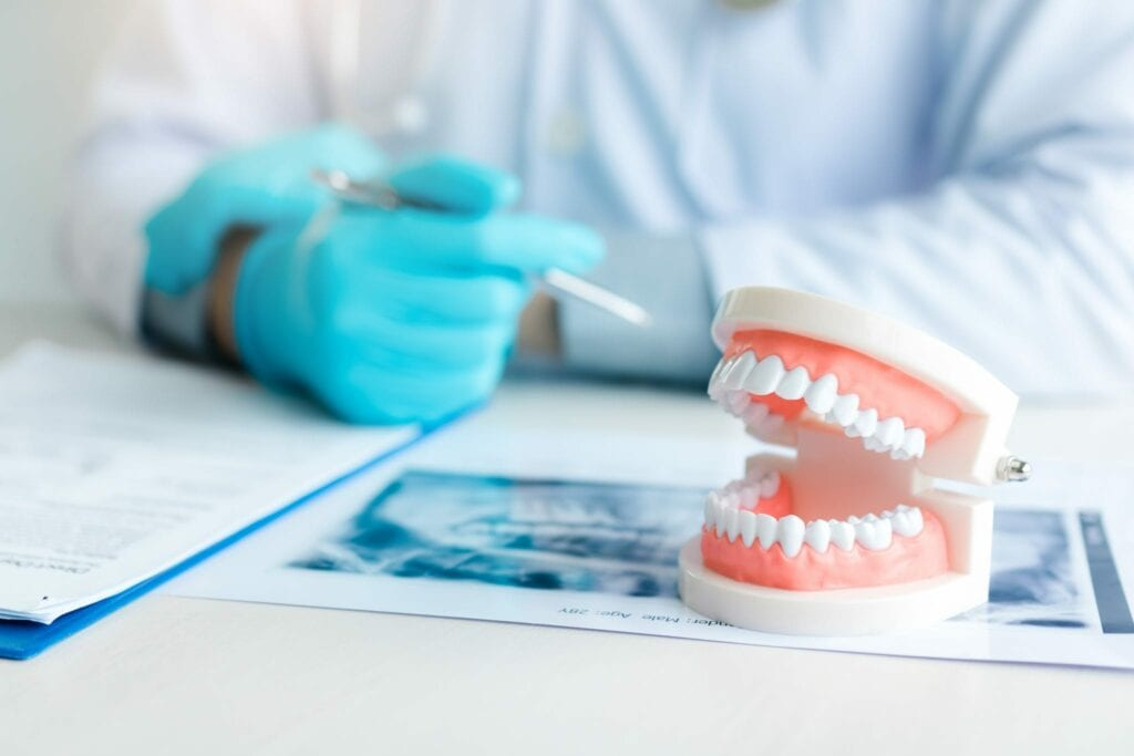 Close up dentures with dentist working on table in clinic dentures idental group